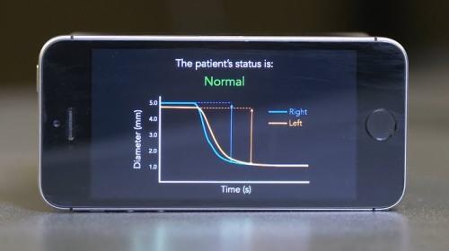 PupilScreen - Ứng dụng phát hiện tổn thương não trên điện thoại thông minh